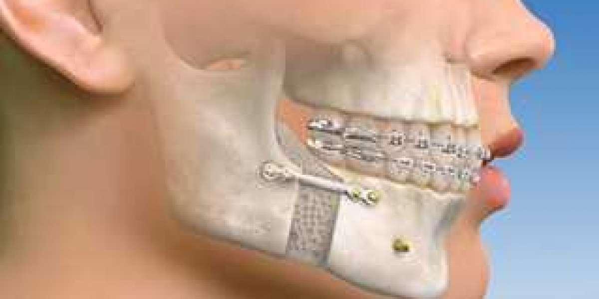 Wisdom Teeth In Upper Jaw Movies Watch Online 1080p Mp4